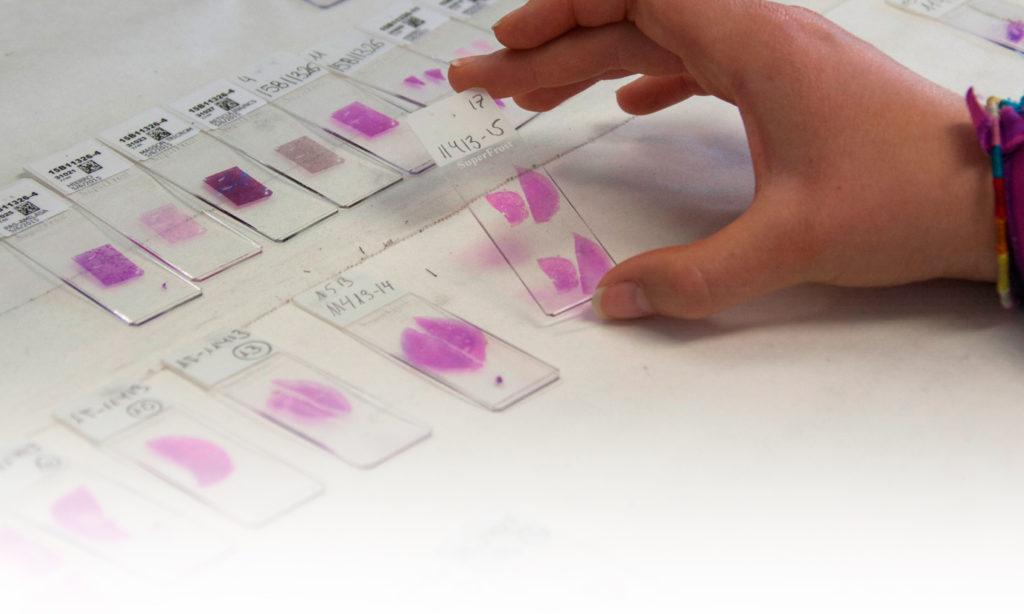 Cristales preparados con muestras para el microscopio